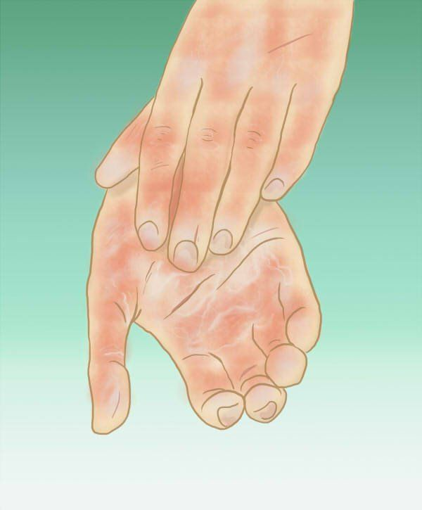 poor blood circulation in feet treatment