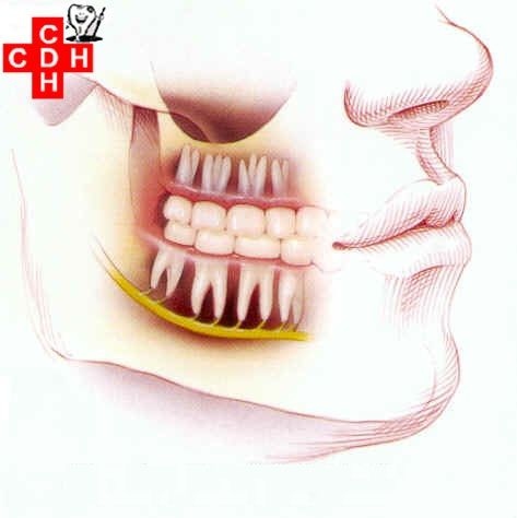 #Impacted #Teeth An impacted tooth is a tooth that is positioned against another tooth, bone, or soft tissue so that it is unlikely to fully erupt through. An impacted tooth is simply a tooth that is blocked or 'stuck' under the gum and cannot erupt or grow into the correct position. http://goo.gl/FkFwRh