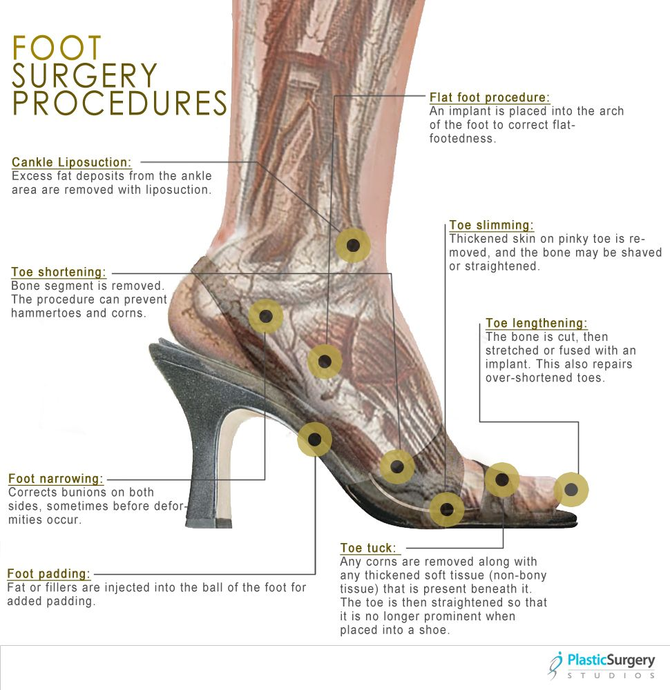 Different types of cosmetic foot surgery procedures