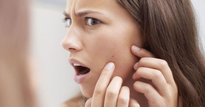 How do you prevent pimples?  #wieghtloss  #fitness