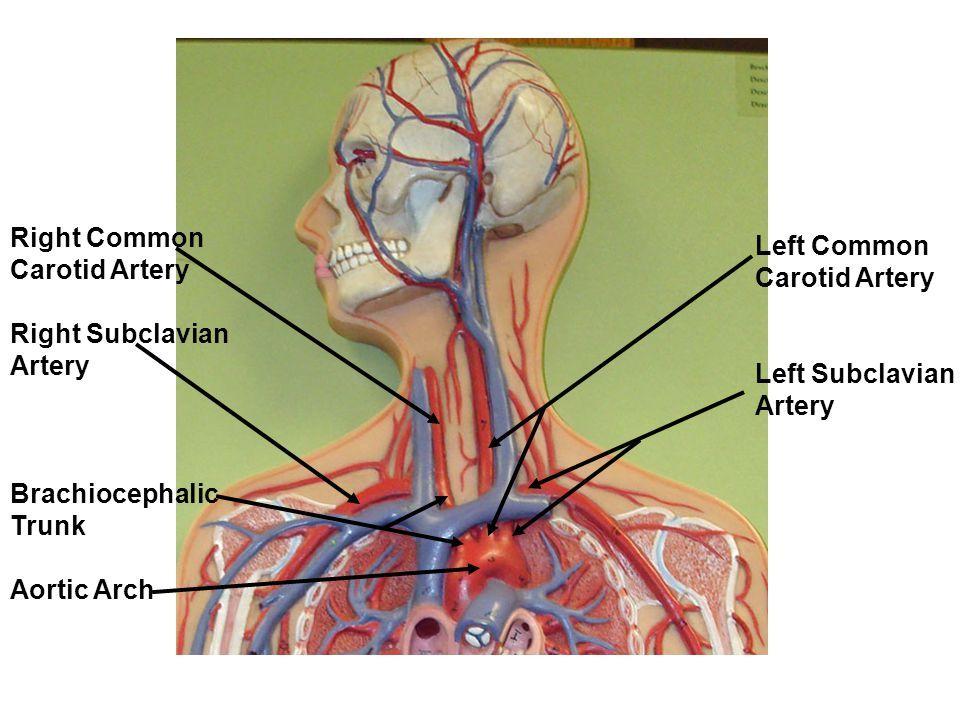 Image result for brachiocephalic trunk | Anatomy | Pinterest | Anatomy