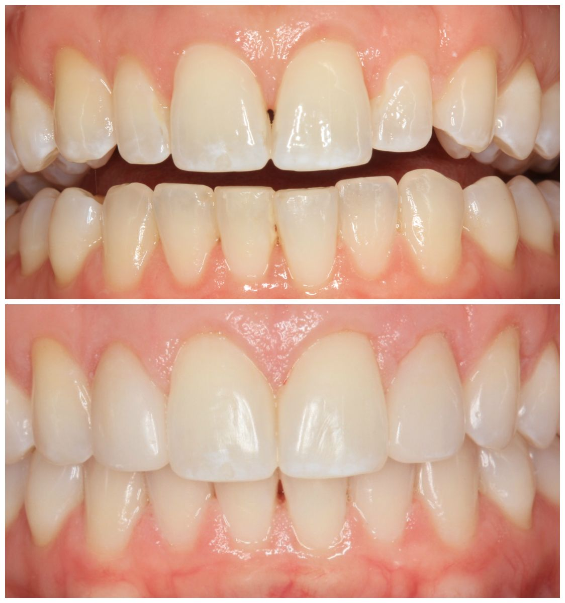 Another Smile Makeover by Dr. Ann Sielicki! This lady was not happy with the 6ff35993ee