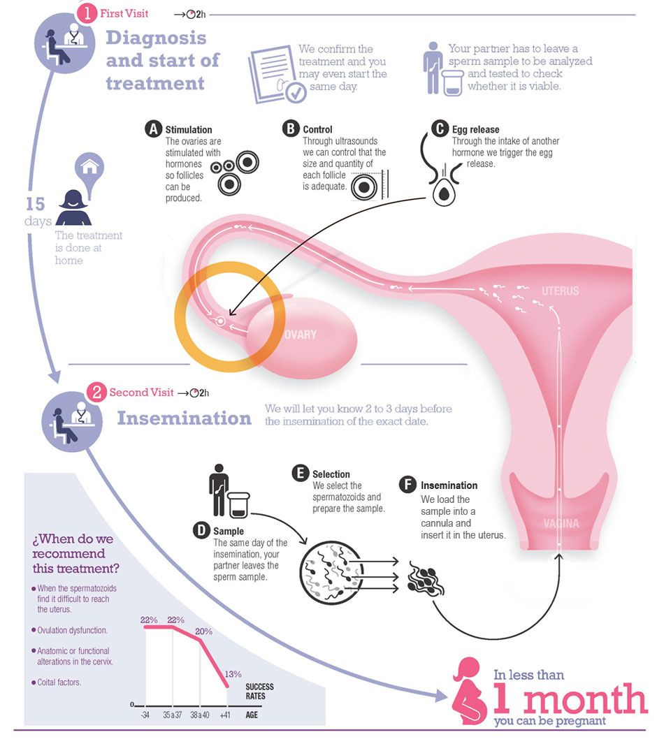 insemination 17 Best images about Artificial Insemination Center in Delhi on Pinterest |  Manual, Couple and Medicine
