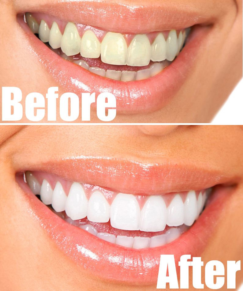 How To Have Natural White Teeth In 3 Minutes Works 100