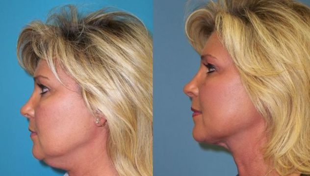 There's a New Way to Get Rid of Your Double Chin