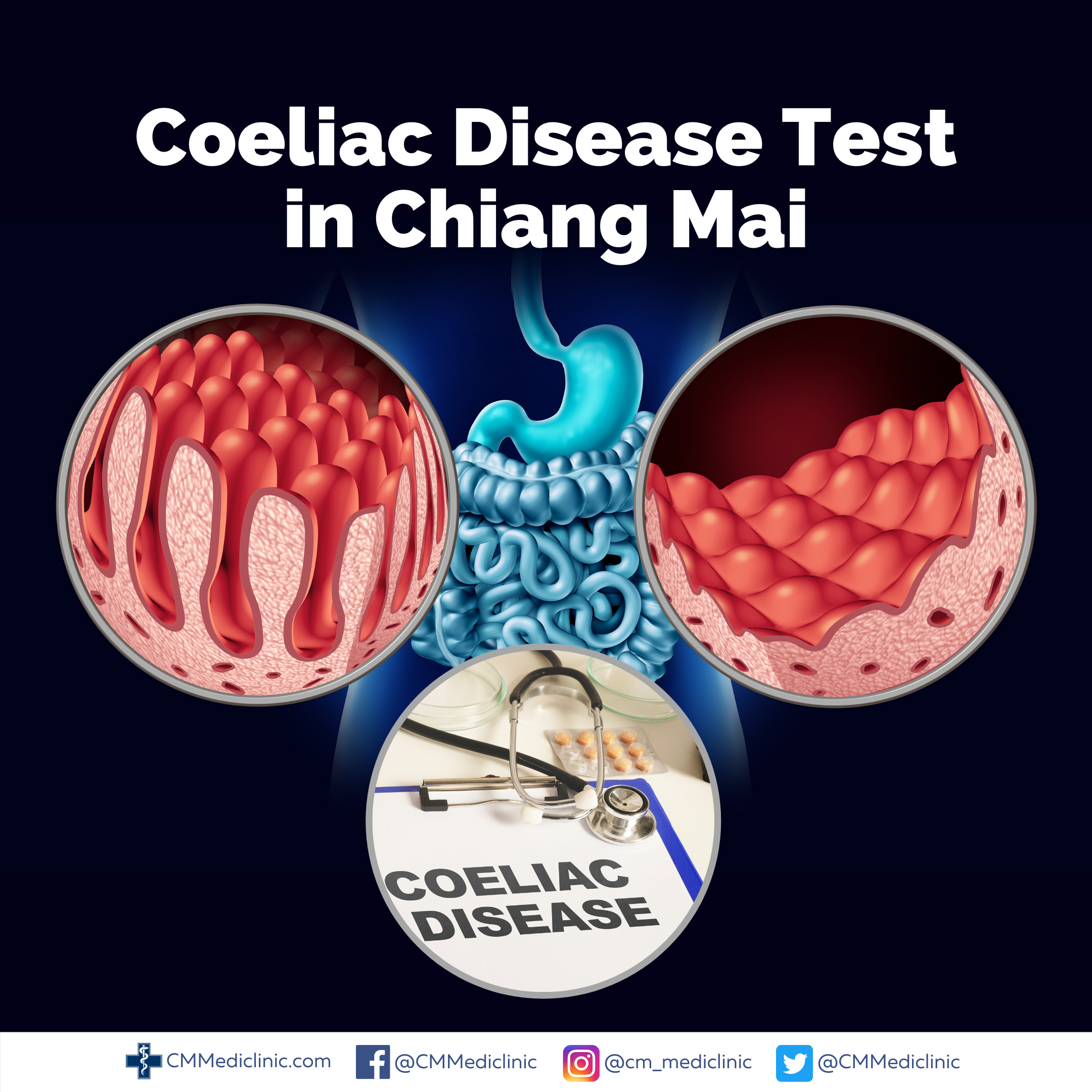 Celiac Disease Test Chiang Mai, Thailand. in 2020