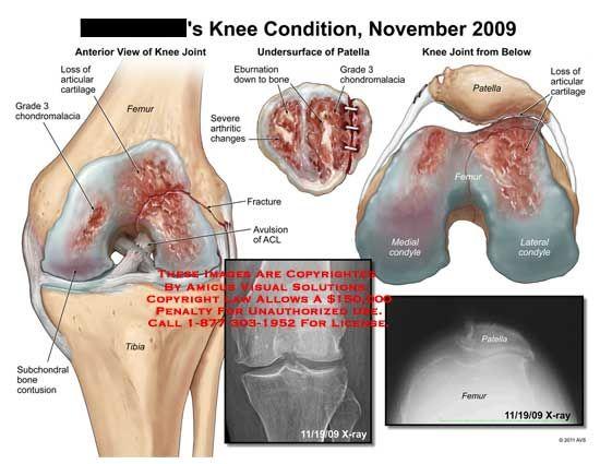 Medial Femoral Condyle Chondromalacia - Bing Images | knee ...