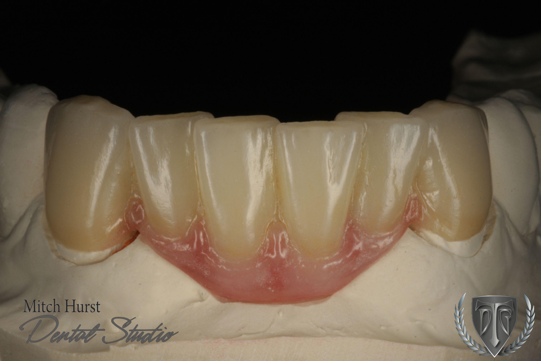 Dental Crowns Cosmetic Dentistry Beautiful Smile Ceramic Restoration Hurstdentalstudio Com Dental Cosmetics Dental Crowns Cosmetic Dentistry