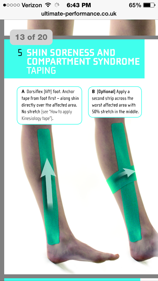 Kinesio Tape For Compartment Syndrome Howtostopshinsplints Tibial