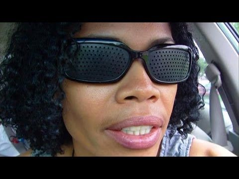 Pinhole Glasses Transform My Keratoconus Blurred Vision Into