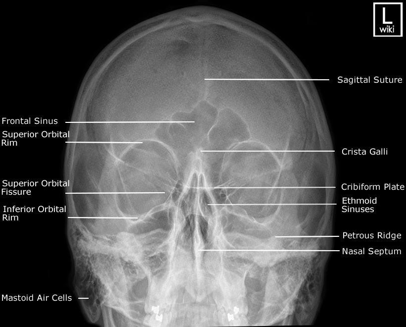 Facial Bones - PA 30° (Caldwell) | Radiographic Anatomy | Pinterest ...