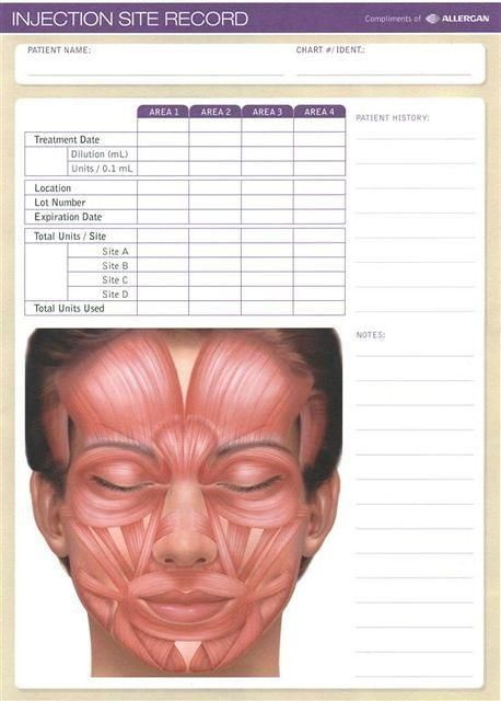 Image result for Botox Injection Sites Chart | Botox and