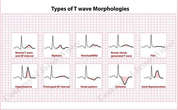 T wave morphology Ecg app, Medical, Cardiology