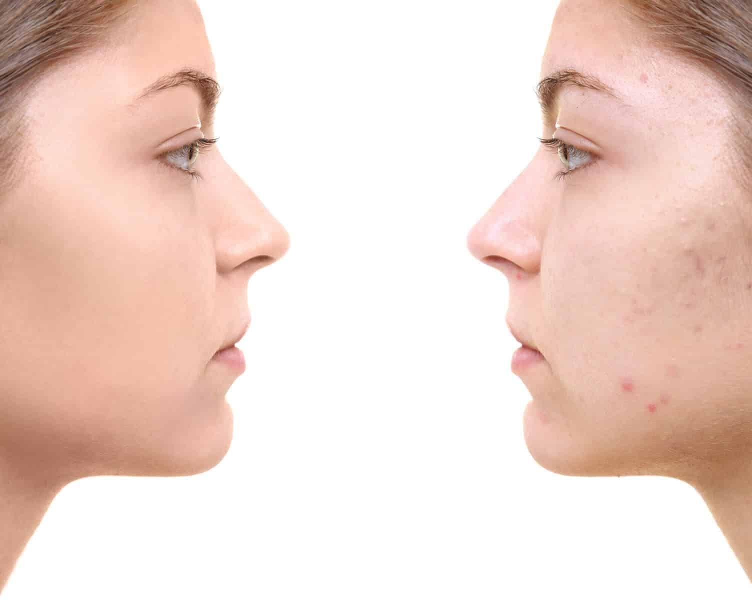 Pin On Skin Oils