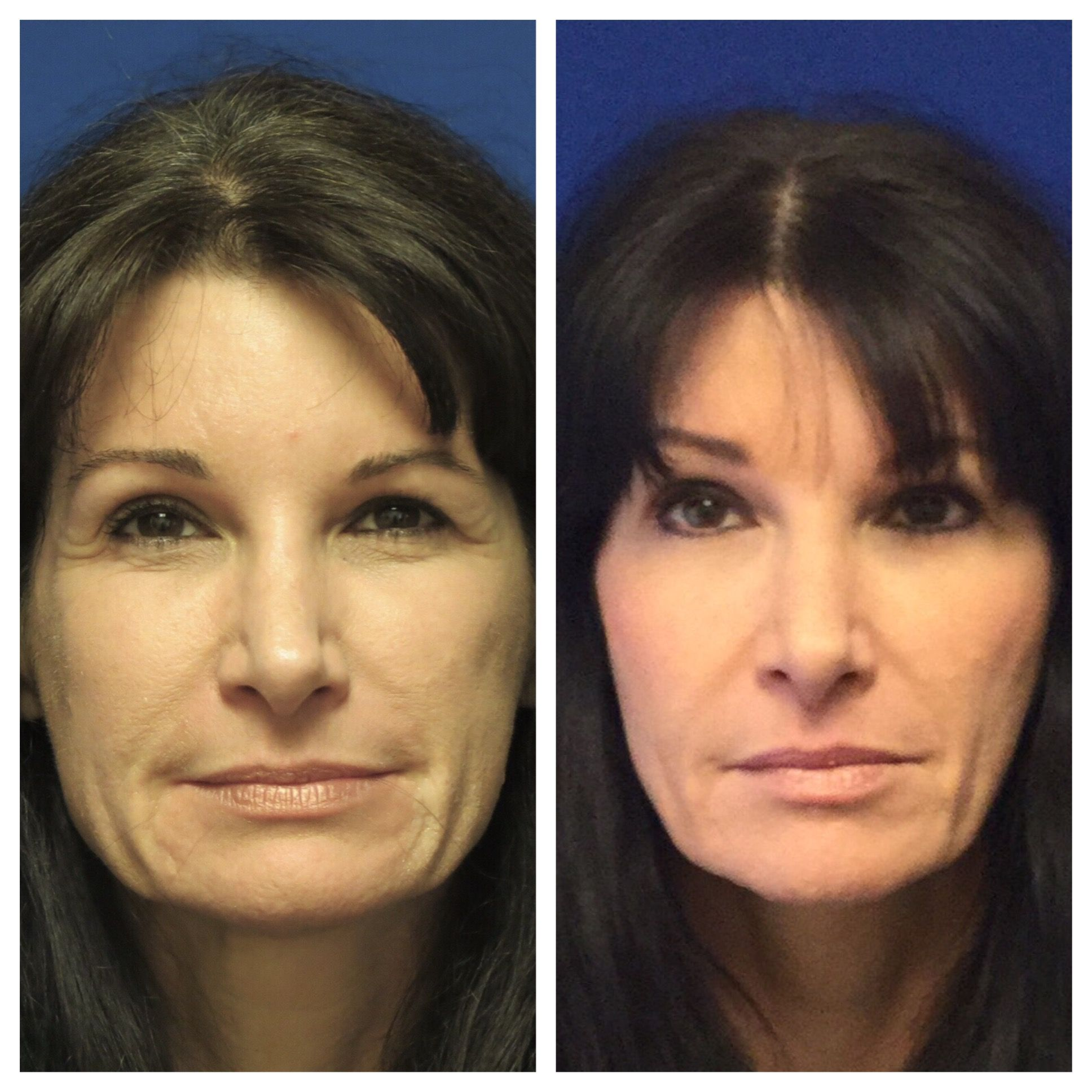 Jaw Reduction and Jawline Reshaping/Masseter Muscle Relaxed