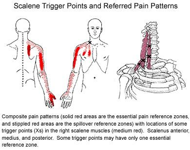 scalenes  PinpointBodywork.com  The leading edge, interactive resource for massage therapists and bodyworkers. Pinpoint Bodywork offers evidence-based continuing education courses and practical strategies designed to catapult your practice forward.