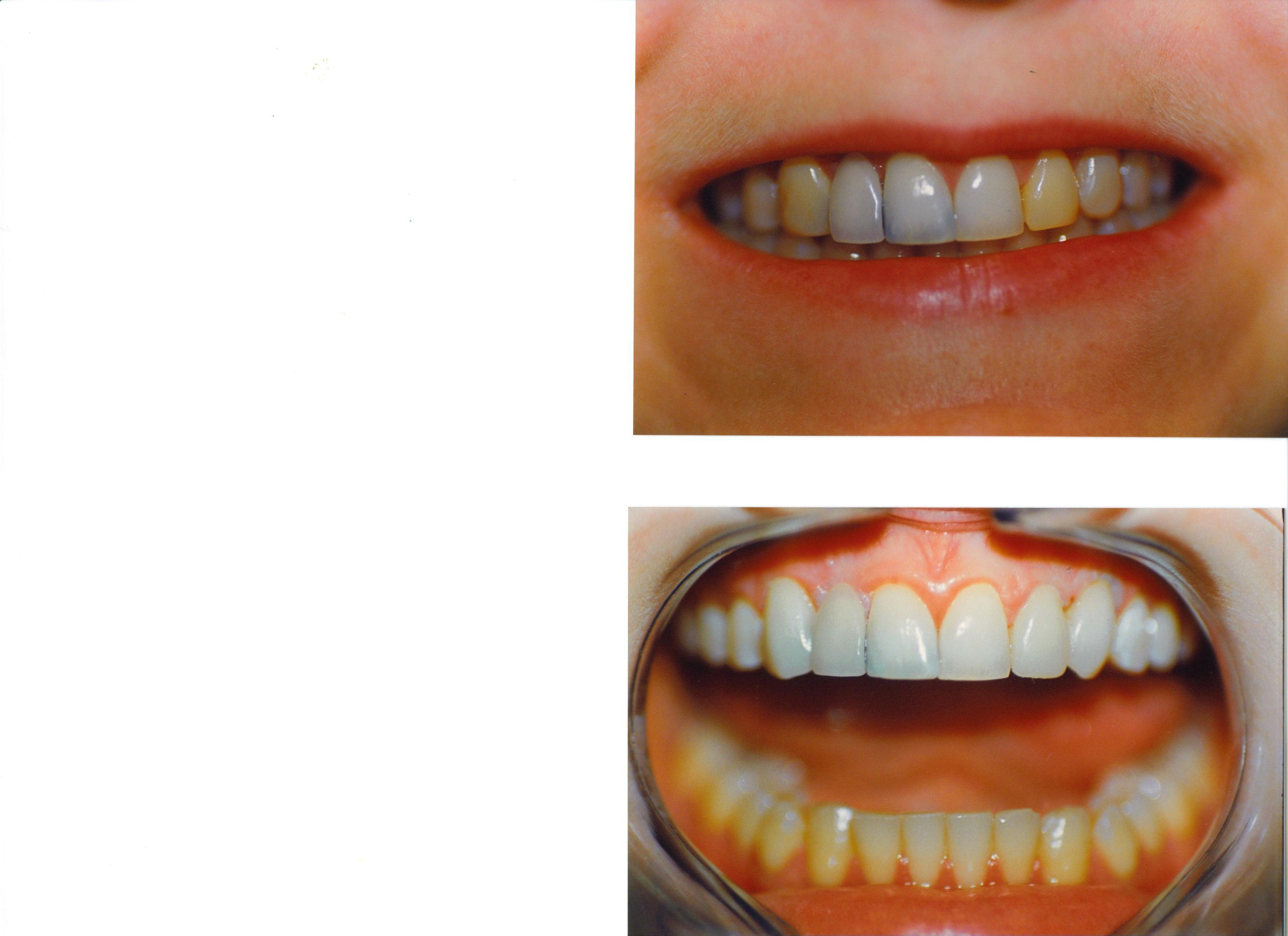 Accessible Cosmetic Dentistry Veneers #toothpaste