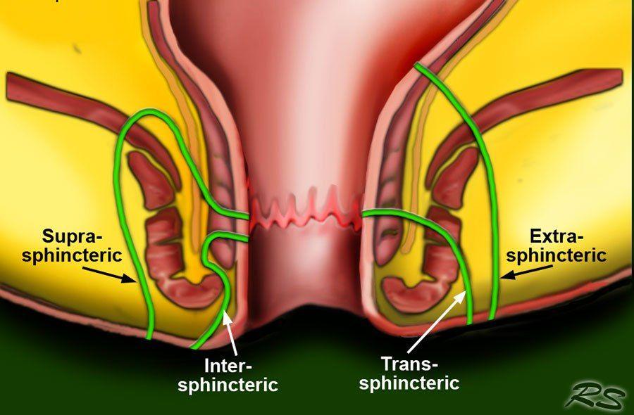 الناسور Laser Eye Surgery Cost Crohns Crohns Disease