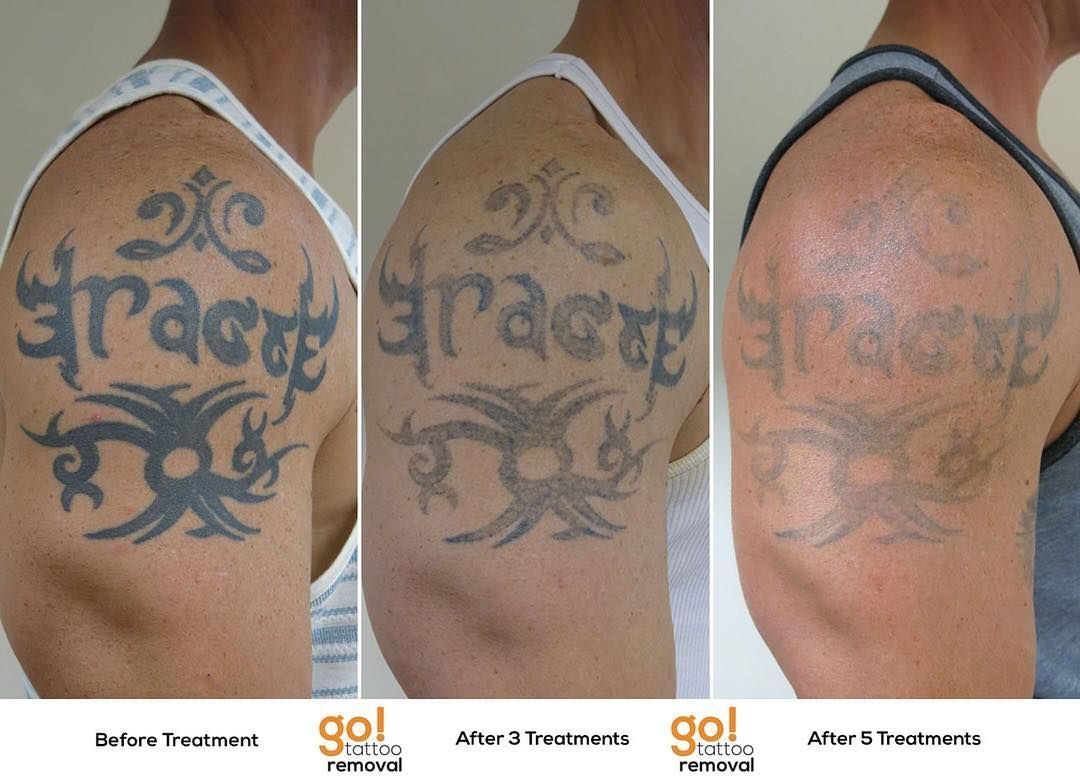 Tattoo removal is a process this client started with us 12