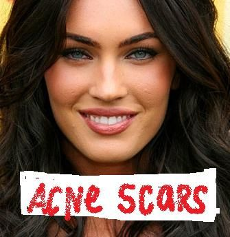 How Do Stars Like Brad Pitt Get Rid of Their Acne Scars ...