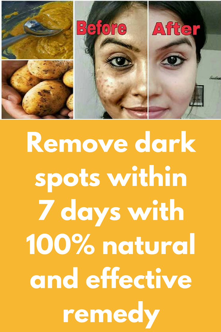 Remove dark spots within  days with  natural and effective