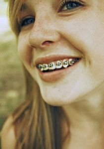 marx girl teen mit zahnspange