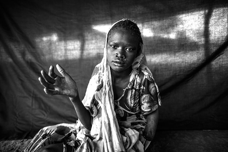 Eight months before this photograph was taken, Taiba, 15, fled her village of Lahmar in Sudan's Blue Nile state. Leaving with nothing but the ragged clothing she was wearing, Taiba, her mother and five brothers embarked on a two-month journey to South Sudan. She regularly went days at a time without eating, wore no shoes, and had nothing to carry water. She stayed alive by scavenging for fruits in the forest and by begging for food and water. During the journey she suffered from diarrhoea…