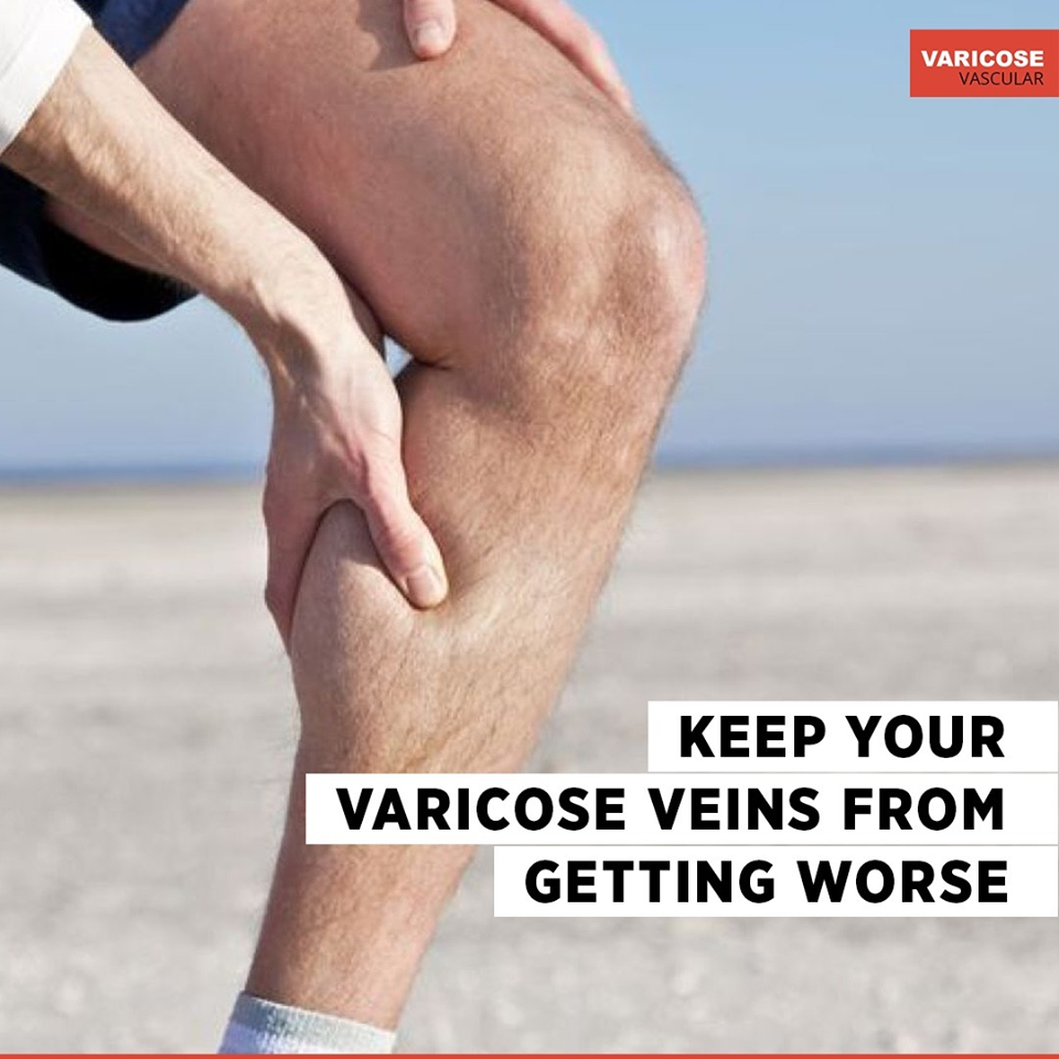 Here are a few ways to prevent your varicose veins from