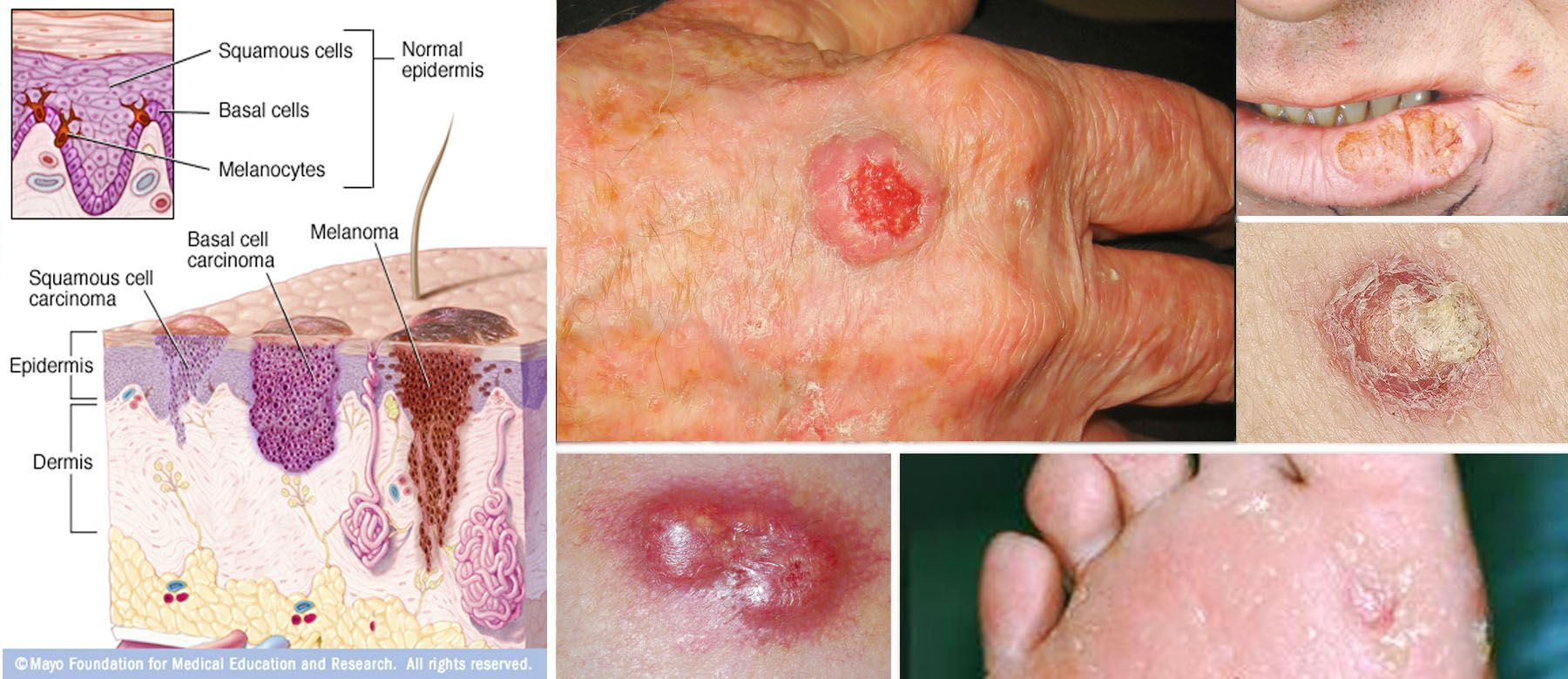 skin cancer – squamous cell carcinoma, Human Body