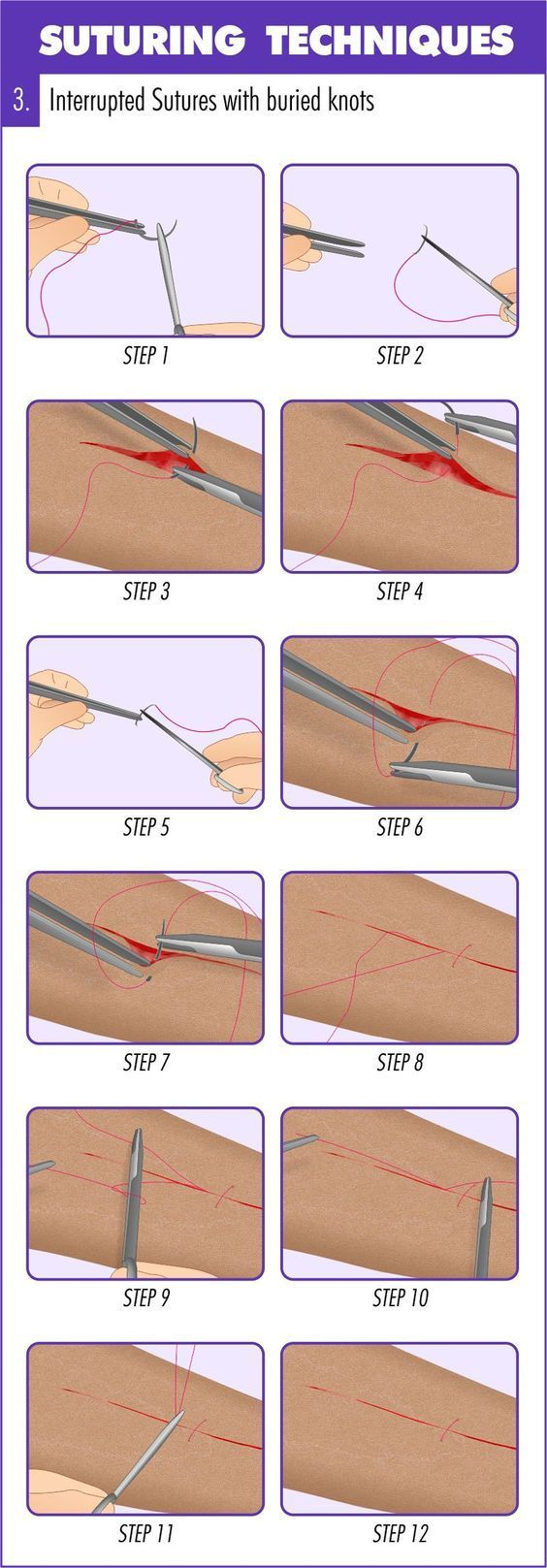 Medical Basics - Medical Education Made Simple #surgicaltechnologist Surgical Suturing Techniques Mastery Guide #nursingschool #nurse #rn #nursing #nurses #nursingstudent #resources #study #inspiration #school #tips #surgicaltechnologist