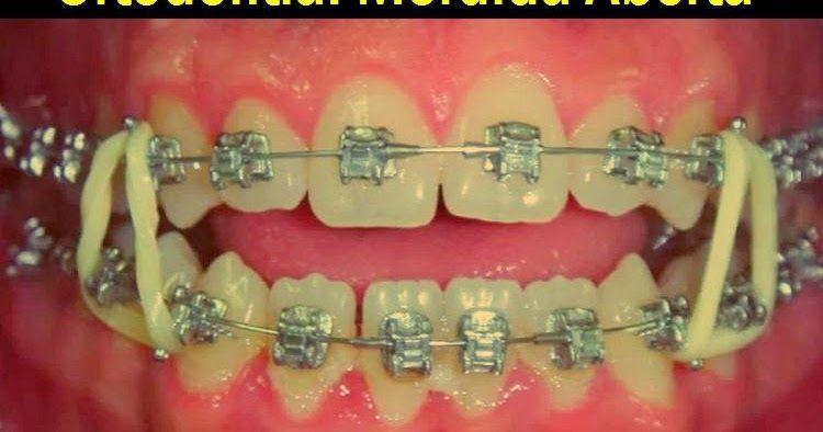 Pin On Tratamiento Dentales