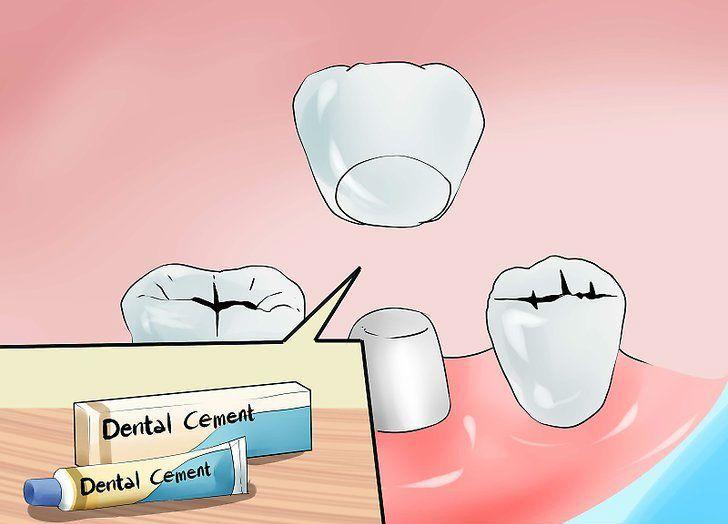Cost of fixed denture denture dental restoration