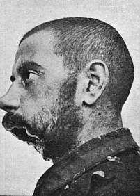 traumi facciali,  prima guerra mondiale WW 1 - Cerca con Google