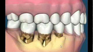 YouTube periodontal pocket formation, via YouTube.