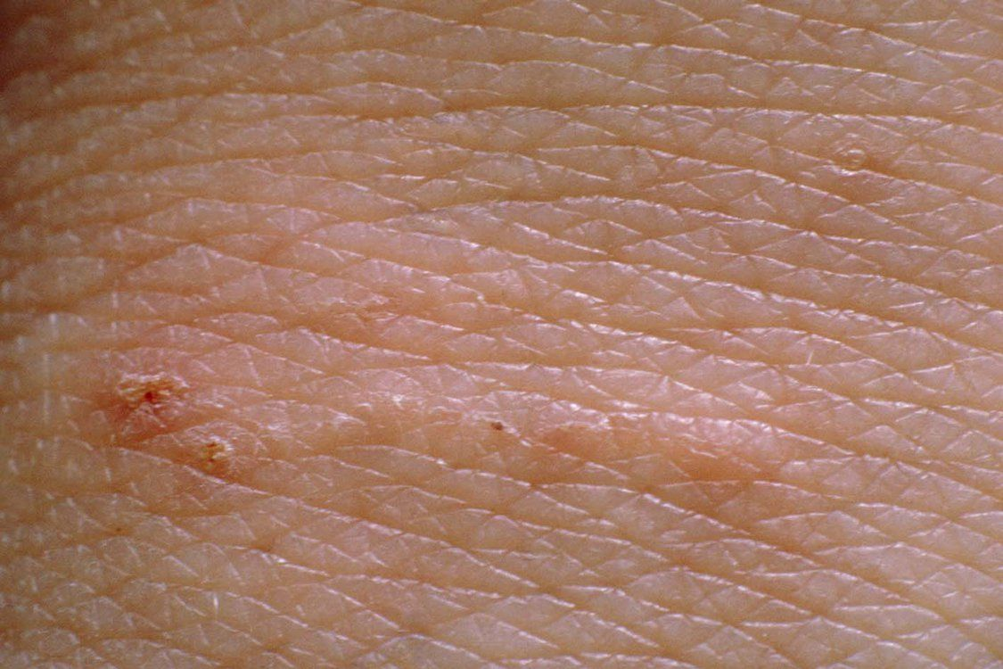 Silvery Lines On A Hand Caused By Scabies Mites Scabies Scabies Treatment Home Remedies For Scabies