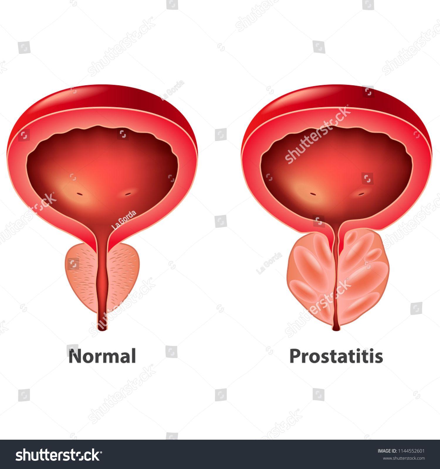 Radie prosztatitis