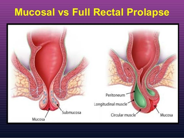 Valuable things that cause anal prolapse