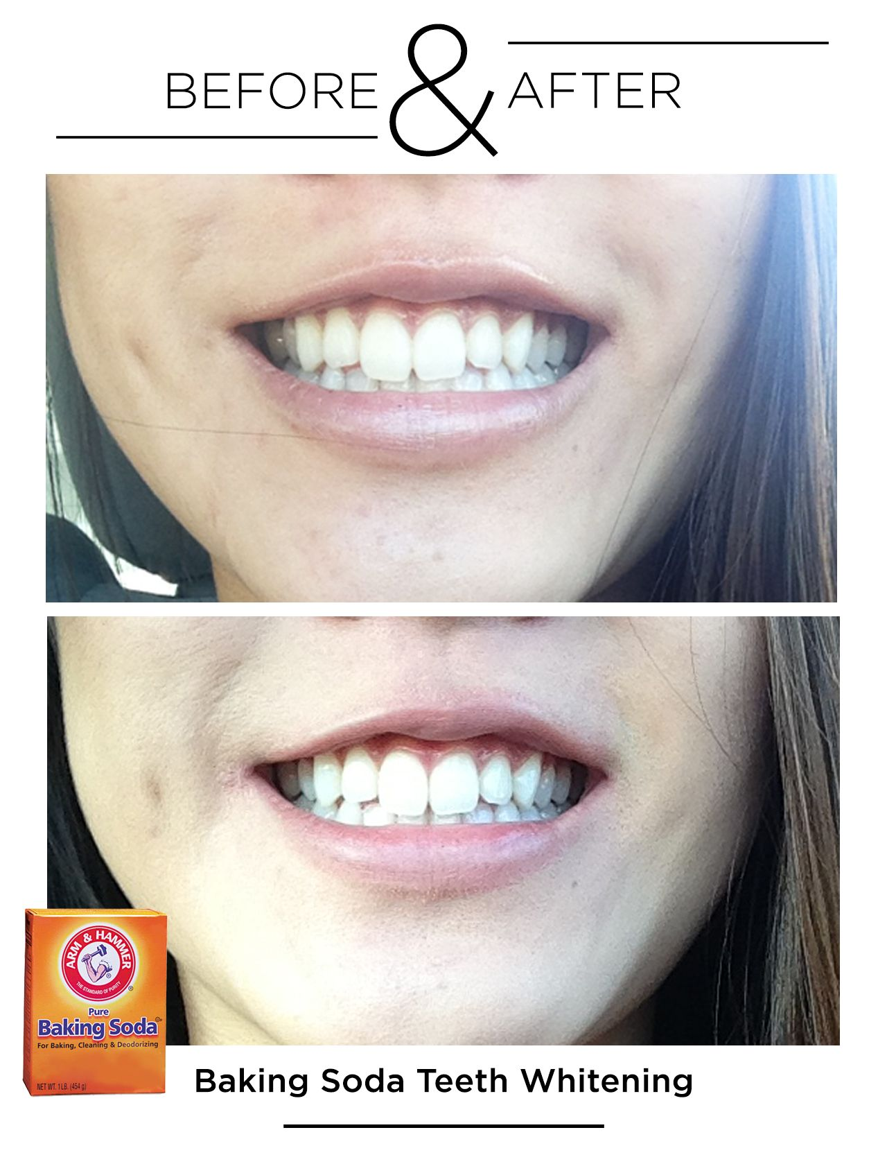 Before & After Teeth Whitening with Baking Soda BEAUTY