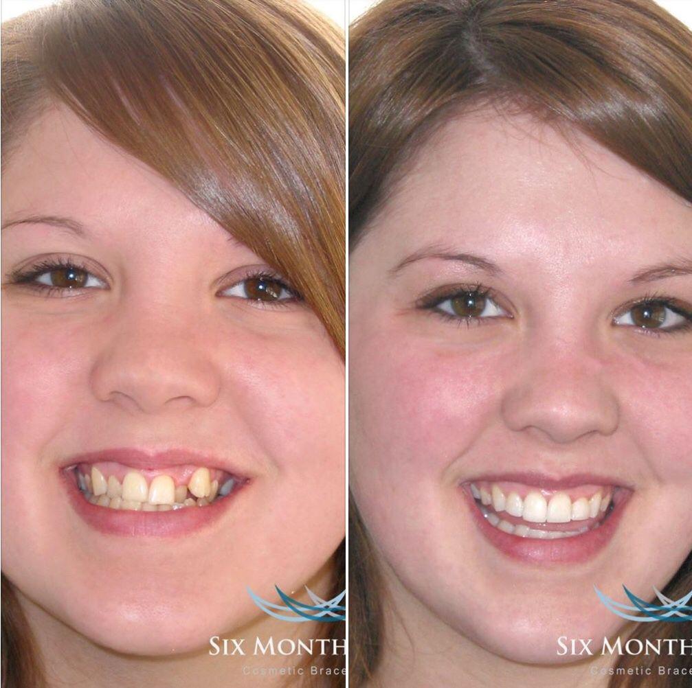 Before and after estetica dental dental estetica