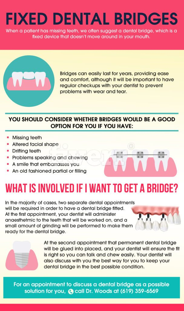 Fixed Dental Bridges Mapped Out
