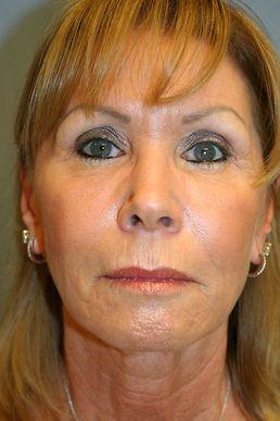 Facial rejuvenation treatments orlando
