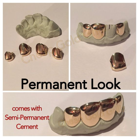 Permanent Gold Teeth Individual Gold Caps by CheapGoldGrillz