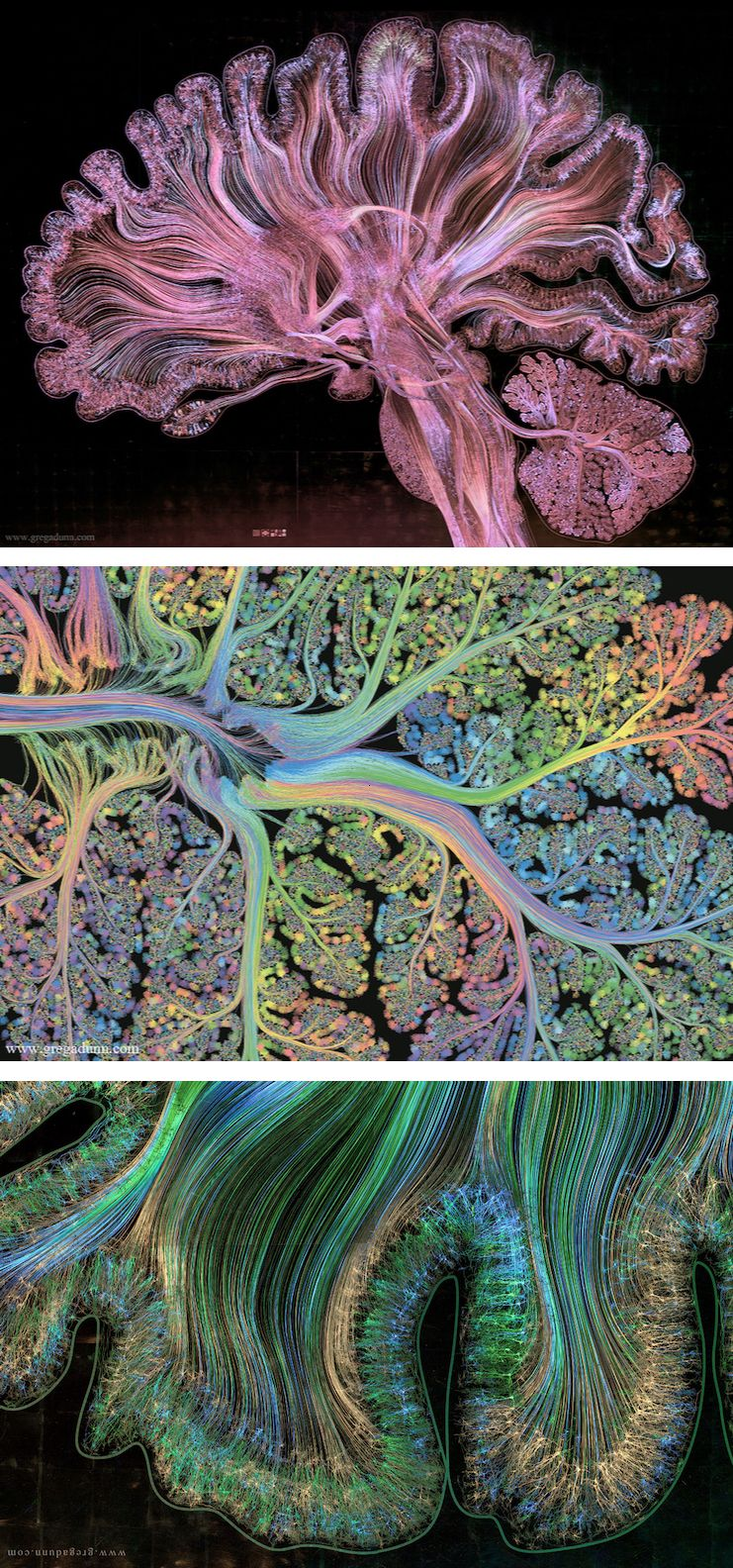 Spectacular Visualizations of Brain Scans Enhanced with 1,750 Pieces ...