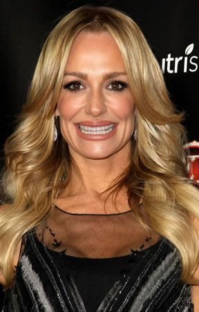 Celebrity Botox Pictures - Photos of Stars Before and After