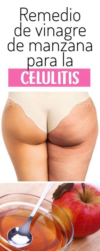 Y los la gluteos para celulitis en piernas caseros remedios