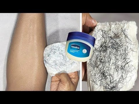 In 5 Minutes, Remove Unwanted Hair Permanently, NO
