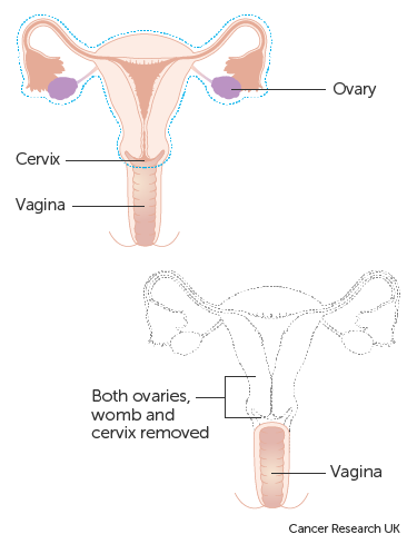 Cancer and abdominal hysterectomy. Cancer and abdominal hysterectomy