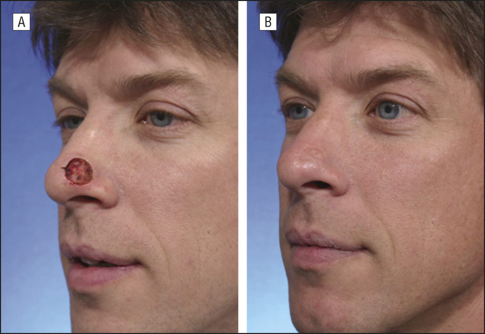 Healed Skin Graft Google Search Skin Grafting Skin Healing Skin
