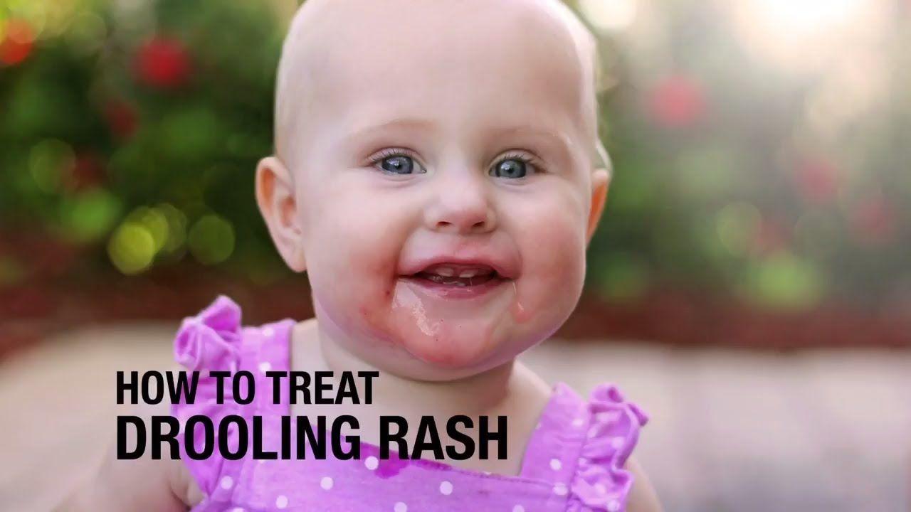 eb1a122dbfa7111ff506d1553b883a71 - How To Get Rid Of Teething Rash Around Mouth