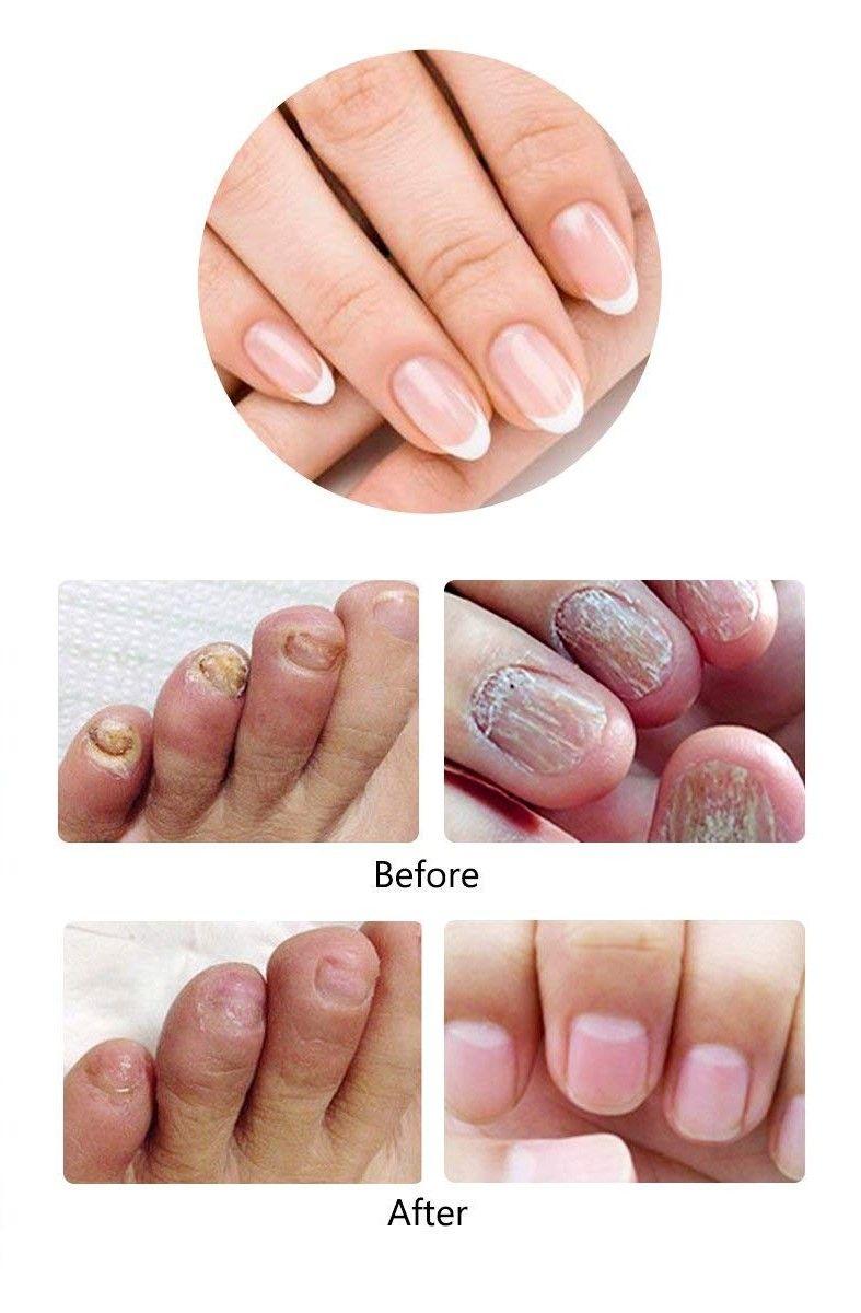 Nail Treatment in 2019 | beauty | Nail Treatment, Nails, Fungal nail ...